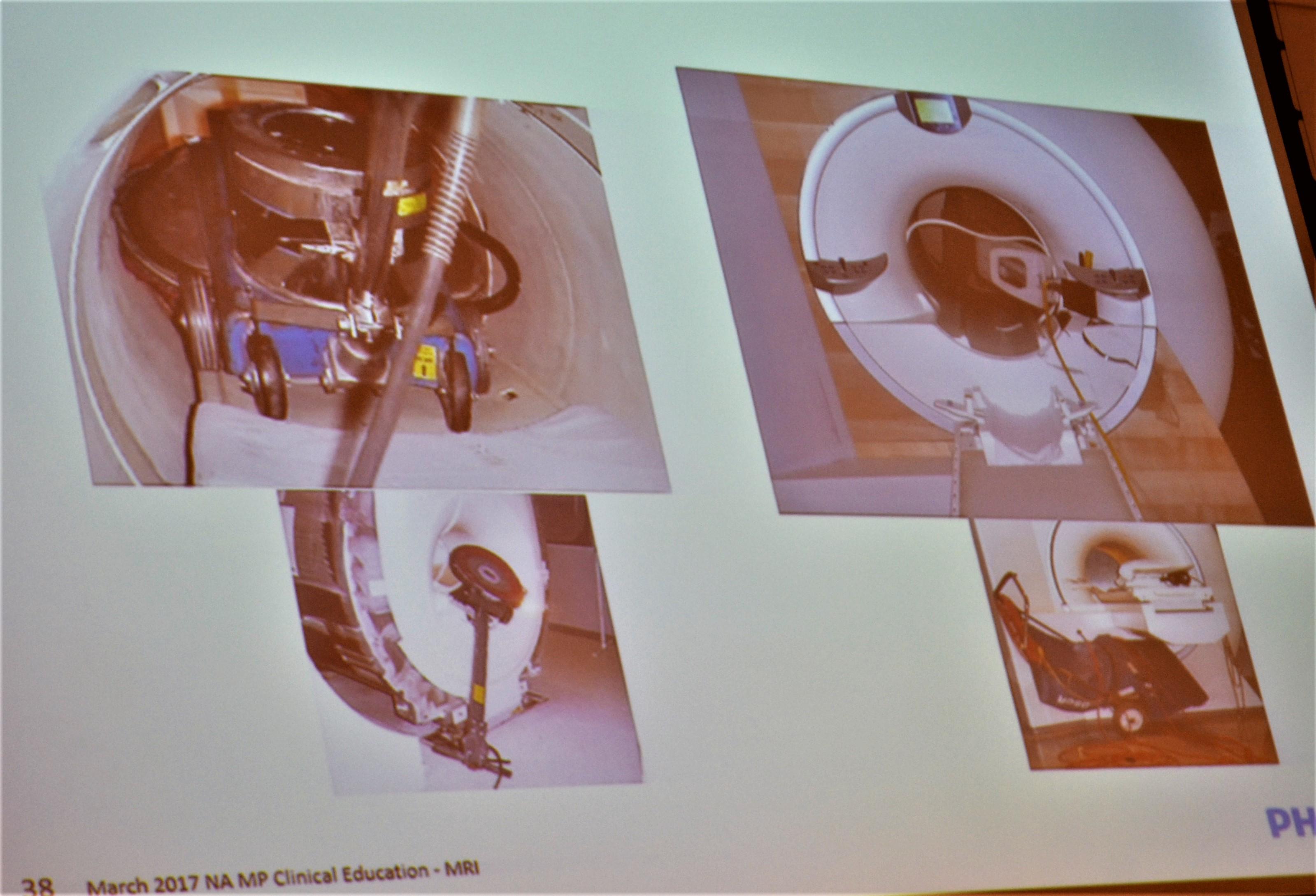 MRI slide
